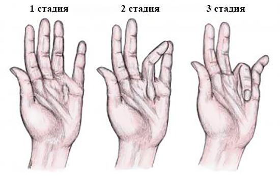 3 стадии