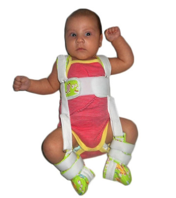 Изображение - Дисплазия тазобедренных суставов у детей код мкб str122