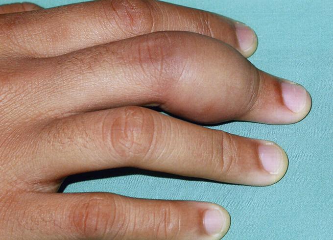 Опух палец на руке