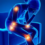 Артрит: что это, классификация, симптомы и как его лечить