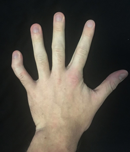 Трудно согнуть пальцы