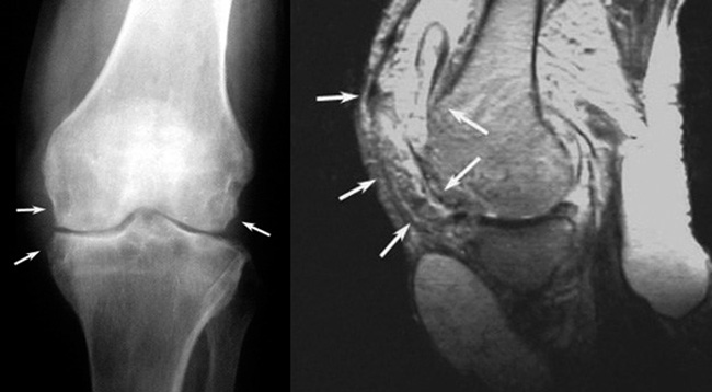 Туберкулез колена