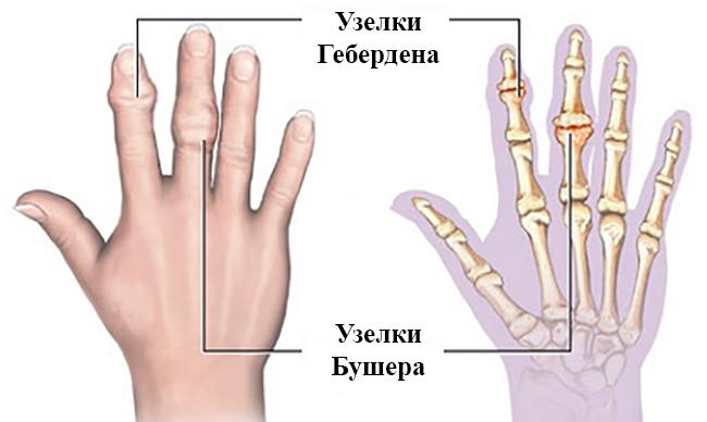 Вид полиартроза