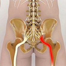 Защемление нерва в тазобедренном суставе: симптомы и что делать