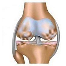 Гонартроз коленного сустава 2 степени: причины, симптомы и лечение