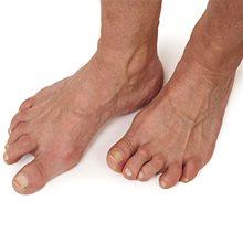 Артрит стопы — причины, симптомы и лечение (с фото)
