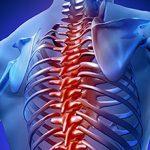 Артроз реберно-позвоночных суставов: виды, симптомы и лечение