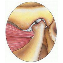 Артрит челюстного сустава: причины, симптомы и лечение