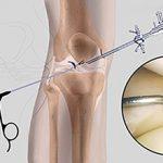 Артроскопия коленного сустава: что это, подготовка и проведение