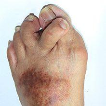 Артрит пальцев ног: причины, симптомы и лечение (с фото)