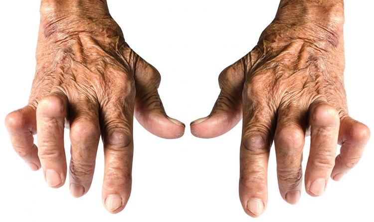 Как выглядит артрит кистей