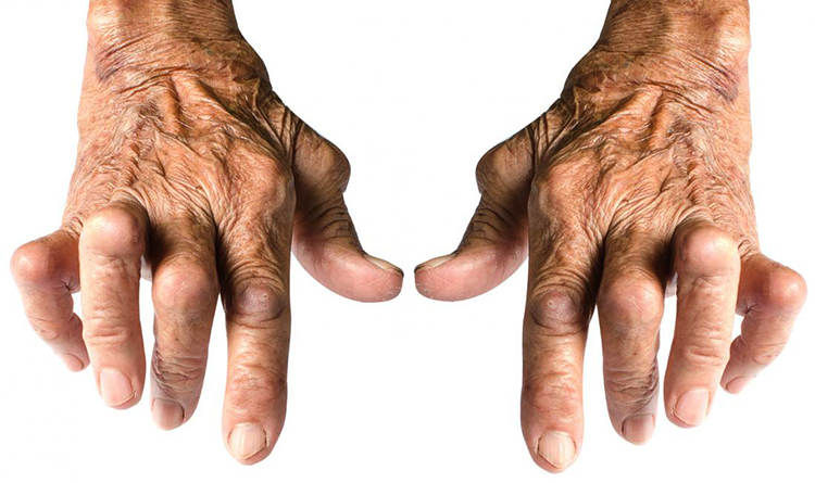 Причины артрита кисти
