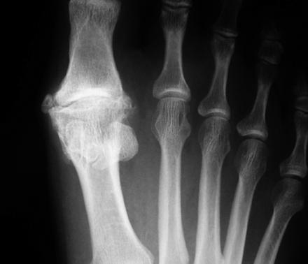 Снимок артрита