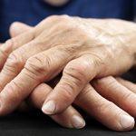 Артрит кисти руки: симптомы, диагностика и лечение
