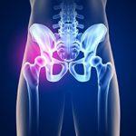 Коксартроз тазобедренного сустава 3 степени: особенности и методы лечения