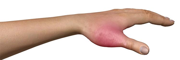 Симптом перелома большого пальца