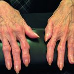 Остеоартрит: что это, причины, симптомы и лечение
