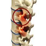 Спондилоартроз: что это такое, симптомы и лечение