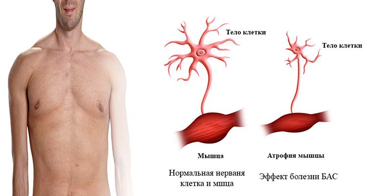 Норма и болезнь БАС
