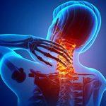 Унковертебральный артроз шейного отдела позвоночника: симптомы и лечение