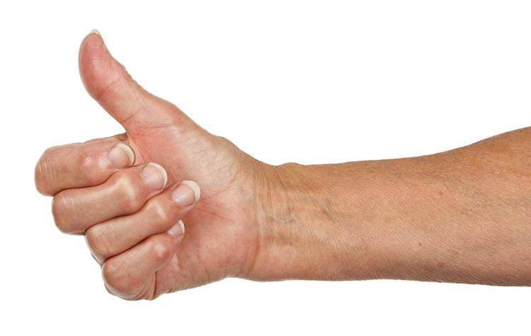Боль в суставе большого пальца
