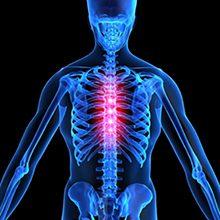 Межпозвоночная грыжа грудного отдела: симптомы и лечение
