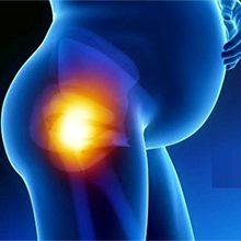 Боли в тазобедренном суставе при беременности: причины и что делать