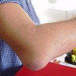Мягкая шишка на локтевом суставе: причины появления и что делать (с фото)