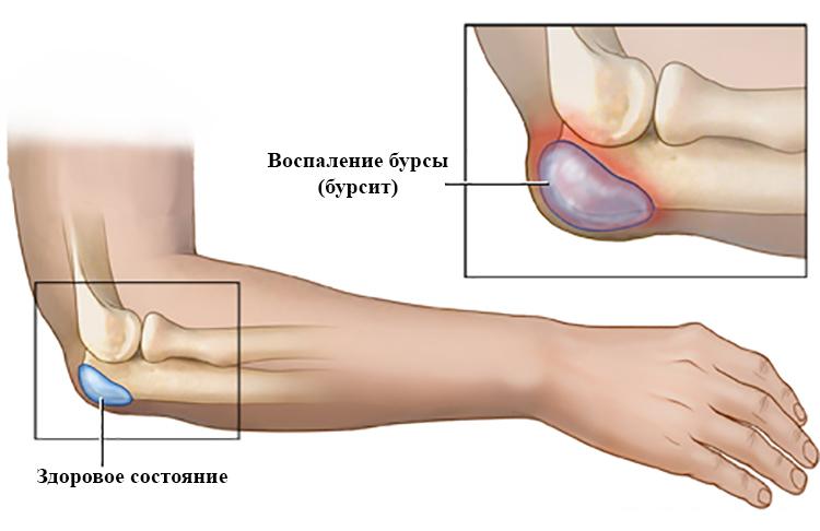 Жидкость в локтевом суставе причины симптомы лечение
