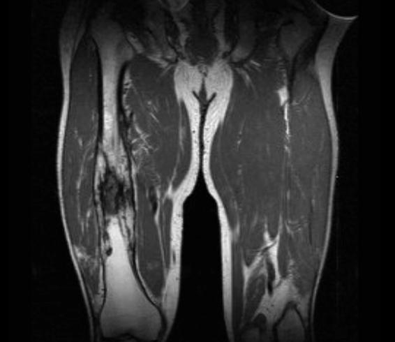 Остеомиелит бедренной кости на МРТ