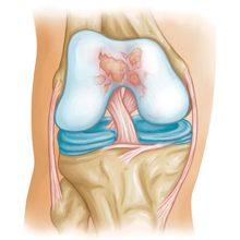 Пателлофеморальный артроз коленного сустава: степени, симптомы и лечение
