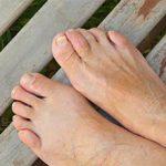 Молоткообразная деформация пальцев стопы: причины, симптомы и лечение