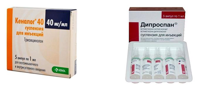 Уколы в суставы название препаратов и цены