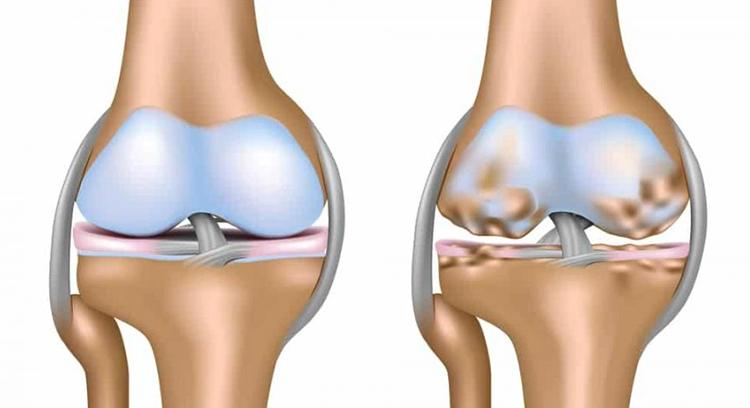 Изображение - Дегенеративное изменение хрящей коленного сустава degs12