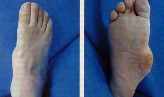 Диабетическая остеоартропатия на ноге