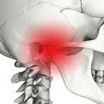 Дисфункция височно-нижнечелюстного сустава: симптомы и лечение