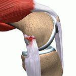 Растяжение связок коленного сустава: симптомы, диагностика и лечение