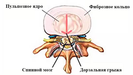 Дорзальная грыжа диска