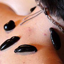 Лечение пиявками остеохондроза шейного отдела — применение и отзывы