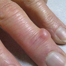Гигрома пальца руки — симптомы и лечение (с фото)