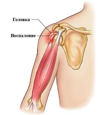 Изображение - Теносиновит лучезапястного сустава лечение golov11