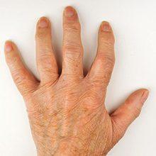 Артроз кисти руки: причины, симптомы и лечение (с фото)