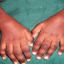Ювенильный ревматоидный артрит: классификация, симптомы и лечение