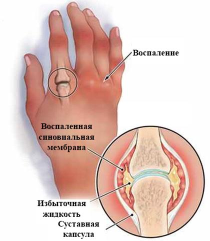 Как выглядит реактивный артрит