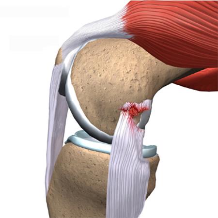 Как выглядит лигаментоз коленного сустава