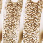Остеопороз: что это, симптомы и как лечить