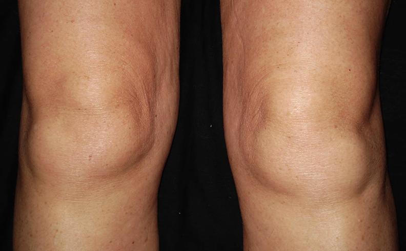 Изображение - Отек в области коленного сустава kolen11