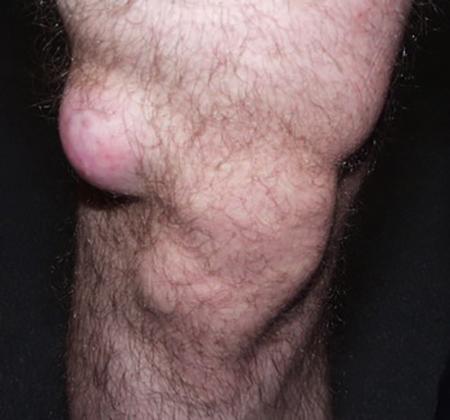 Липома колена