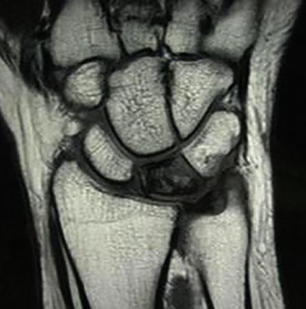 МРТ лучезапястных суставов