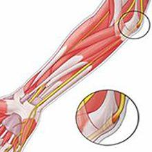 Защемление локтевого нерва — симптомы и методы лечения